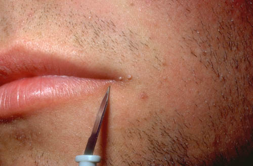 Hpv on lip cure Hpv and skin